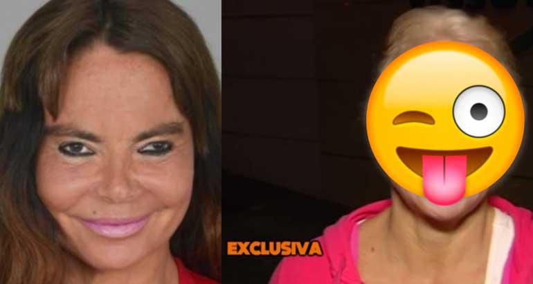Leticia Sabater ojo operado