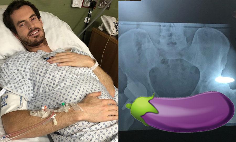 Andy Murray Polla Radiografía Pene