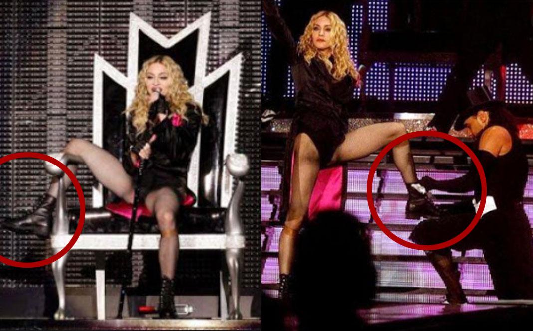 Madonna lesión de rodilla